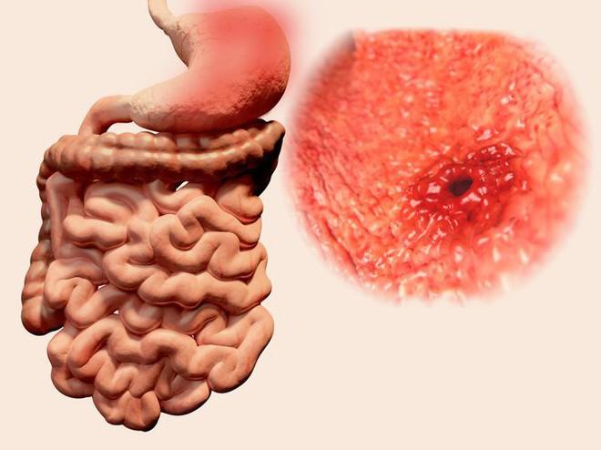 Nôn ra máu: Đừng hoảng sợ mà nghĩ ngay đến ung thư, đó có thể là bệnh lành tính - Ảnh 2.