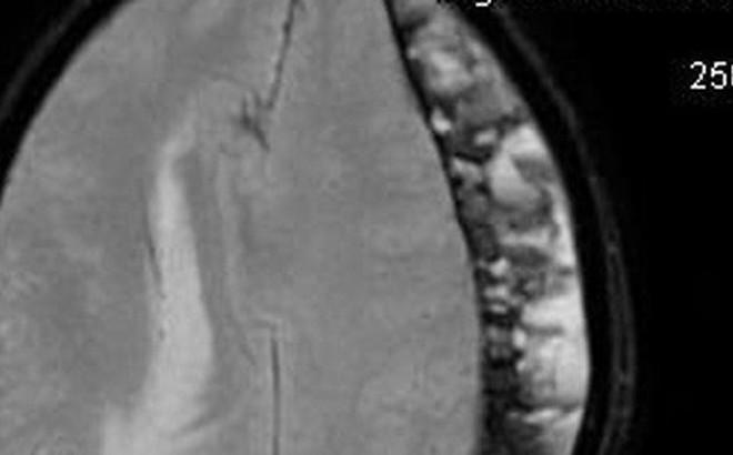 Sau 1 tháng ngã xe máy, người đàn ông nhập viện vì chấn thương sọ não