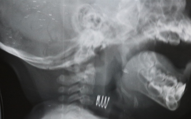 Cháu bé ở Quảng Ninh hóc dị vật khó tin: Lò xo có 2 đầu sắc nhọn đang han gỉ