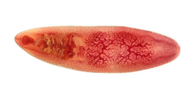 Tử vong sau 3 ngày ăn hải sản sống: Bác sĩ cảnh báo những hệ lụy nếu ăn uống thiếu cẩn thận - Ảnh 4.