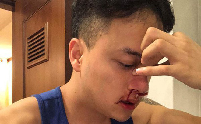 Cao Thái Sơn cấp cứu lúc nửa đêm vì chảy máu mũi liên tục và bất thường