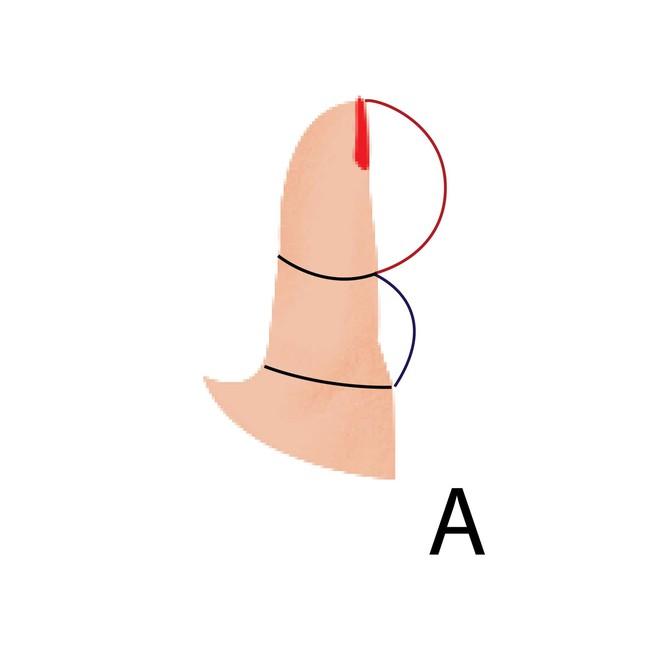 5 kiểu ngón tay cái và tính cách đi kèm, bạn là kiểu người nào? - Ảnh 1.
