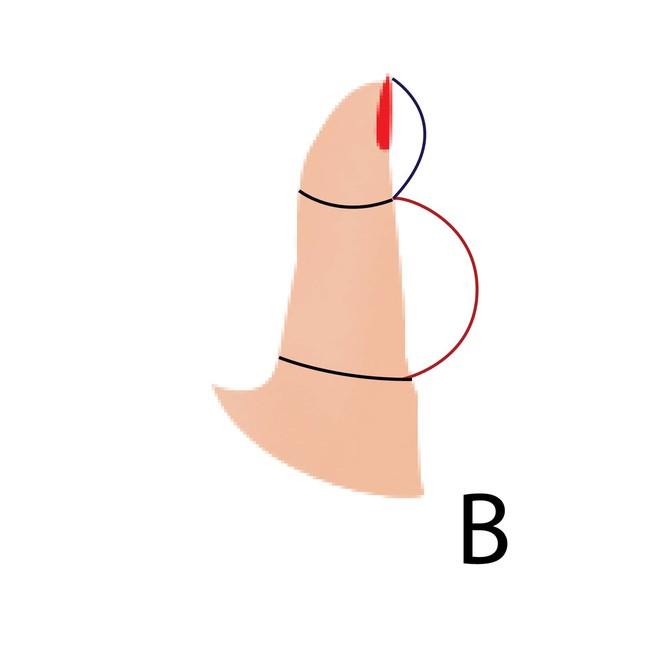 5 kiểu ngón tay cái và tính cách đi kèm, bạn là kiểu người nào? - Ảnh 2.