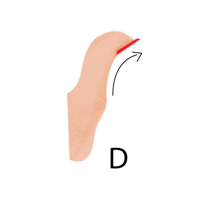 5 kiểu ngón tay cái và tính cách đi kèm, bạn là kiểu người nào? - Ảnh 4.