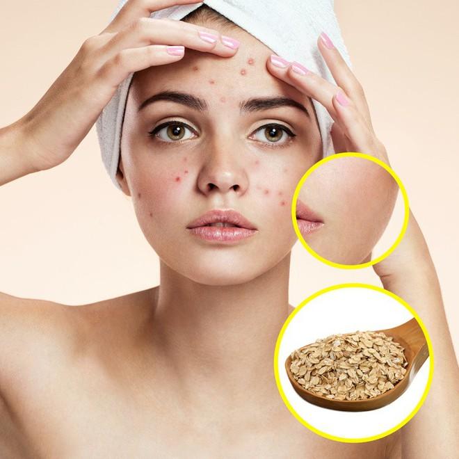 Cách trị ngứa rát, sưng đỏ, bỏng nhẹ và các vấn đề ngoài da bằng nguyên liệu tự nhiên - Ảnh 5.