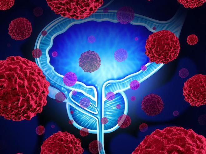 Bác sĩ tiết lộ 3 dấu hiệu tố cáo ung thư bàng quang: Cả nam và nữ đều phải đề phòng - Ảnh 1.