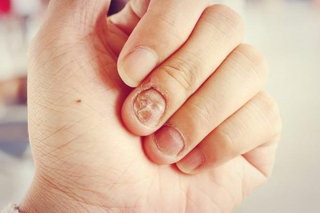 Đừng chủ quan, thói quen cắn móng tay có thể gây ra những hậu quả khôn lường cho sức khỏe mà bạn không ngờ tới - Ảnh 3.