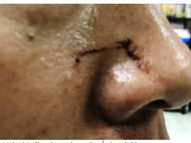 Kiểm sát viên bị đánh tại tòa Bình Chánh nói gì? - Ảnh 1.