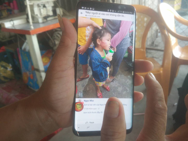 Bé gái 5 tuổi bị bảo mẫu đánh bầm mặt ở Sài Gòn - Ảnh 1.