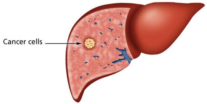 Đau bụng đi ngoài có thể là dấu hiệu sớm của 4 bệnh ung thư: Đau thế nào thì nên đi khám? - Ảnh 2.
