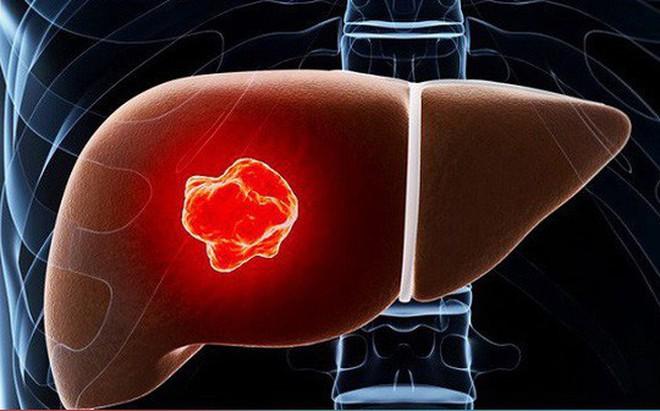 Viêm gan C: Tăng nguy cơ mắc ung thư gan và các bệnh ung thư khác