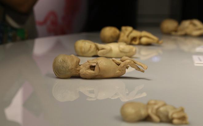 Tạm dừng triển lãm cơ thể người, thai nhi ở TP Hồ Chí Minh vì sai phạm, không trung thực