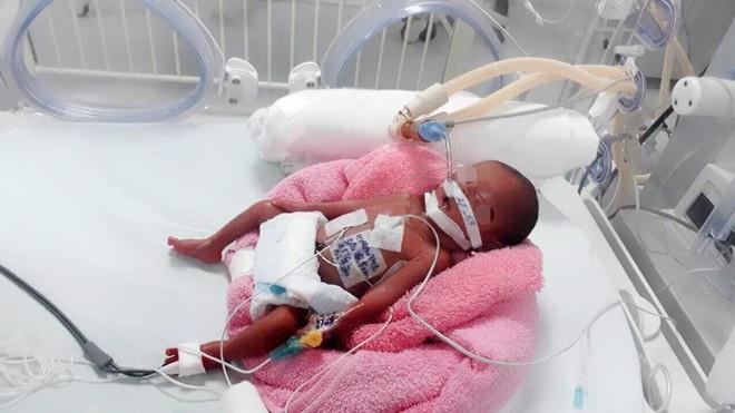 Kỳ diệu bé gái sinh non nặng 600g suy hô hấp, rất nguy kịch được cứu sống - Ảnh 1.