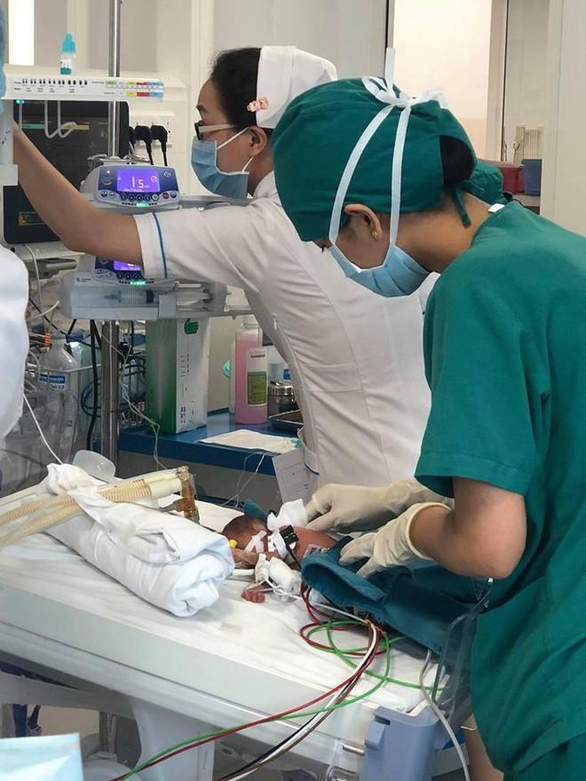 Kỳ diệu bé gái sinh non nặng 600g suy hô hấp, rất nguy kịch được cứu sống - Ảnh 2.