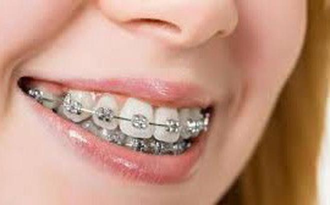 Người trưởng thành có nên niềng răng?