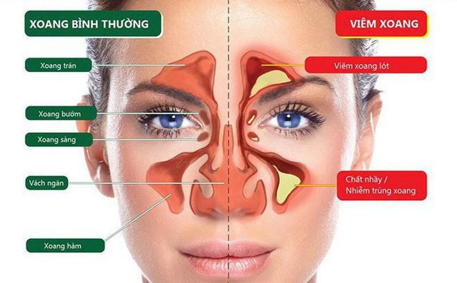 Mua Sinus Plus - Sạch xoang thông mũi, nhận ưu đãi lớn
