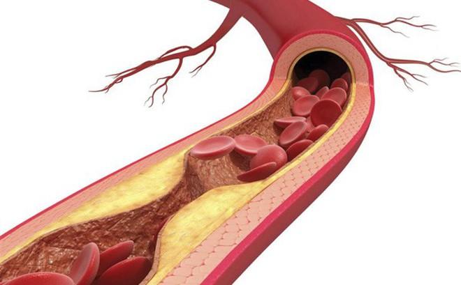 Nhóm thuốc statin làm giảm nguy cơ tử vong do các bệnh lý tim mạch ở nam giới