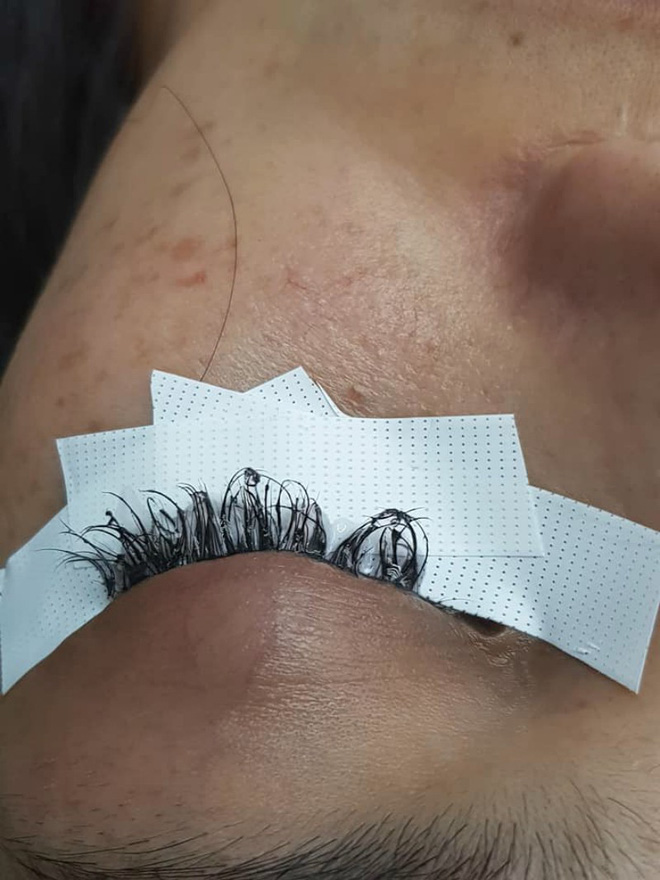 Cô gái đau đớn lĩnh hậu quả với đôi mắt sưng húp, rụng sạch lông mi vì nối mi bằng keo dán sắt - Ảnh 1.