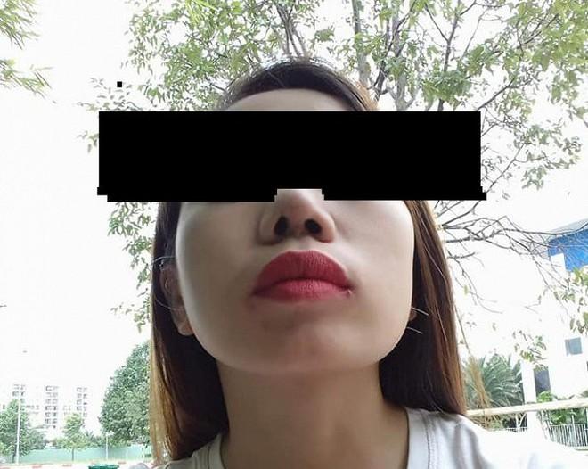 Bỏ 30 triệu đồng phẫu thuật thẩm mỹ, cô gái đau đớn bị lệch mũi - Ảnh 2.