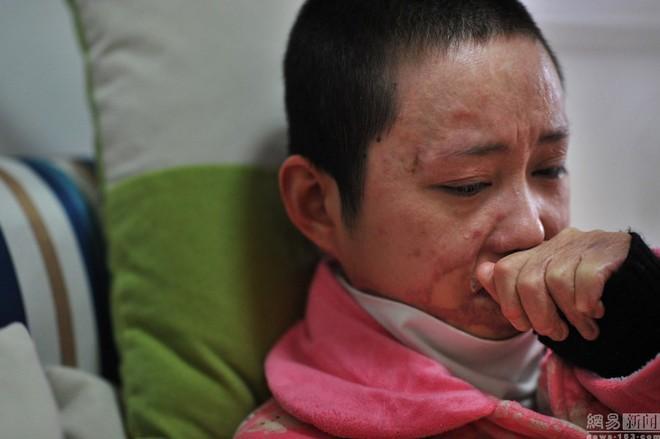 Cả gan từ chối tình cảm thiếu gia tài phiệt, cô gái bị thiêu sống tại chỗ và trải qua 7 năm đau đớn về thể xác lẫn tinh thần - Ảnh 2.