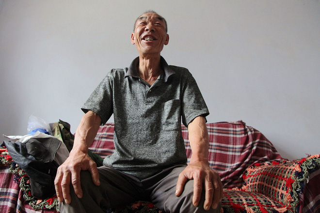 Bí quyết chiến thắng căn bệnh ung thư thực quản của lão nông 64 tuổi, sống hơn 16 năm sau ca phẫu thuật - Ảnh 1.