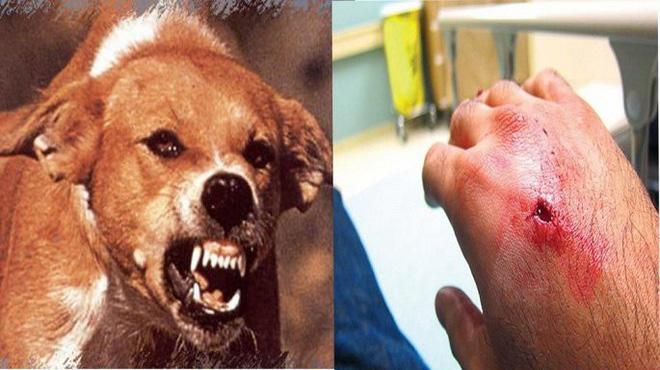 Người đàn ông chết sau 1 tháng bị chó nhà cắn vì không tiêm phòng dại - Ảnh 1.