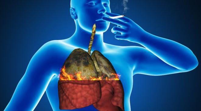 Những dấu hiệu sớm của bệnh ung thư phổi ở nam giới - Ảnh 2.