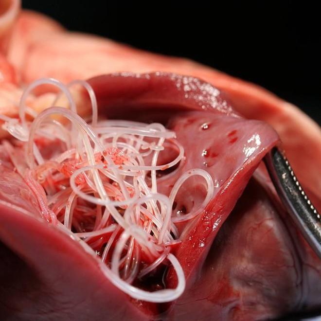 Bác sĩ phát hoảng khi lôi con ký sinh trùng dài 9cm từ não của cô gái 16 tuổi: Cảnh báo cẩn trọng từ món ăn nhiều người thích - Ảnh 2.