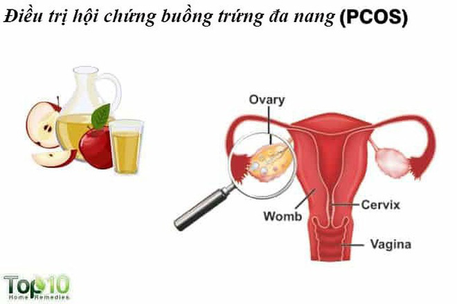Giấm táo mang lại nhiều lợi ích không ngờ cho phụ nữ - Ảnh 3.