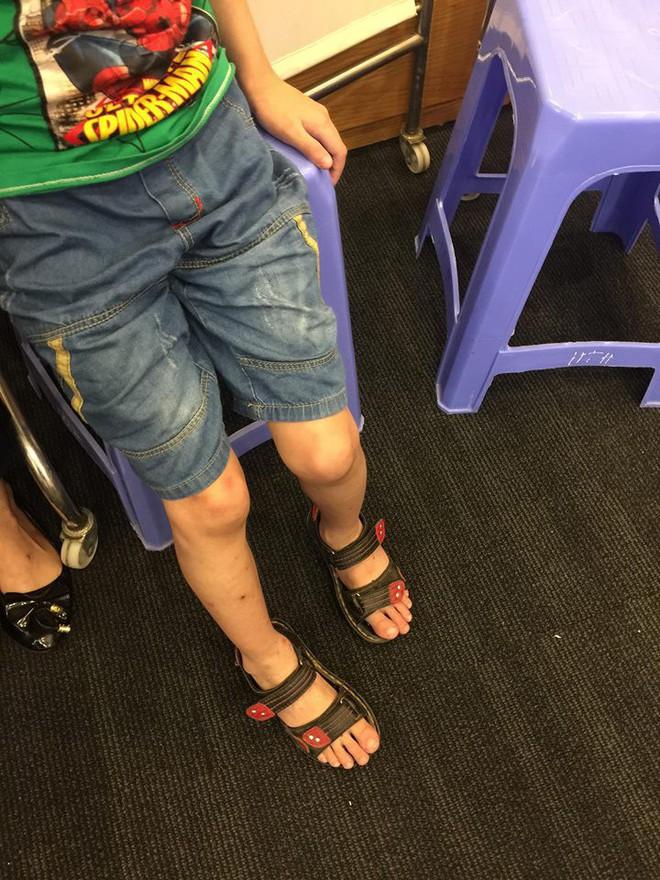 Quặn lòng bé 7 tháng tuổi dị tật bàn chân khoèo, trật khớp háng hai bên, viêm đa khớp bẩm sinh - Ảnh 3.
