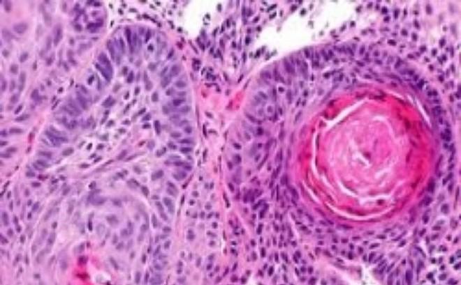 Hy hữu: 'Rụng' dương vật do ung thư mà không biết