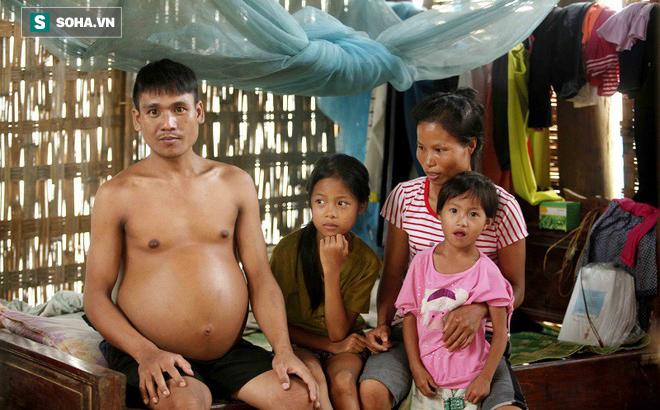 Nhà nghèo, cơm không đủ ăn, chồng bạo bệnh, con suy dinh dưỡng nặng