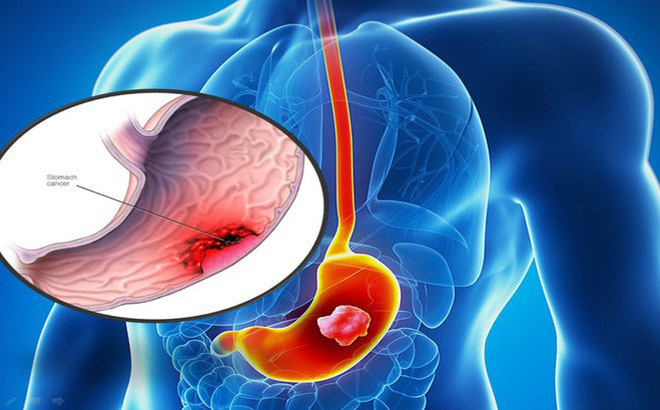 Ung thư dạ dày ở Việt Nam có xu hướng tăng và trẻ hoá: Những người có nhiều nguy cơ mắc