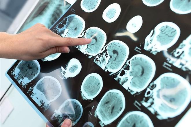 Đột quỵ não: Không còn chỉ người già, càng ngày thanh niên ngoài 20 càng hay mắc phải - Ảnh 1.