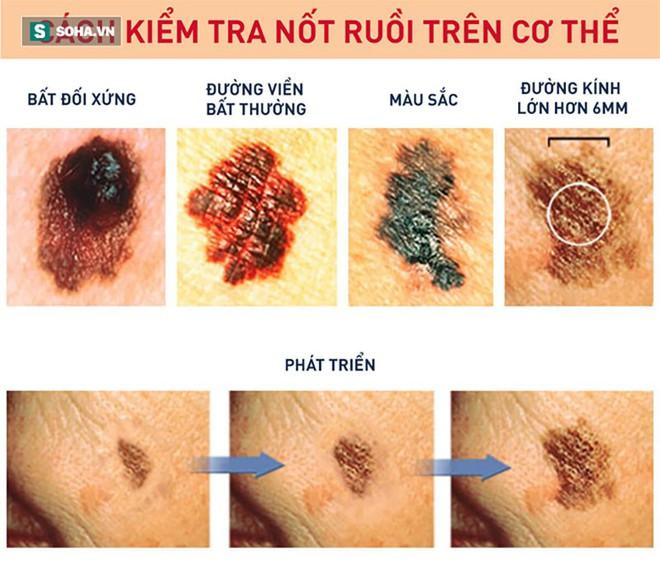 Lông mọc ở nốt ruồi không gây ung thư và có thể cắt bỏ được: Sự thật có phải vậy không? - Ảnh 2.