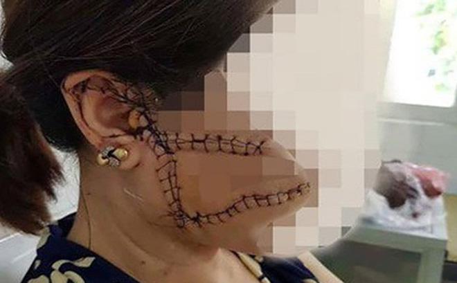 """Lý do chưa khởi tố người chồng dùng dao rạch mặt, cắt gân chân """"vợ hờ"""" ở Bắc Giang"""