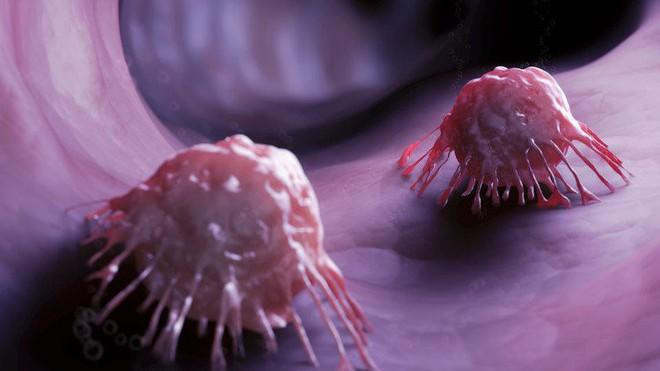 Một củ khoai lang có thể mang lại điều thần kỳ, phòng ung thư: Đây là bí quyết ăn đúng! - Ảnh 2.