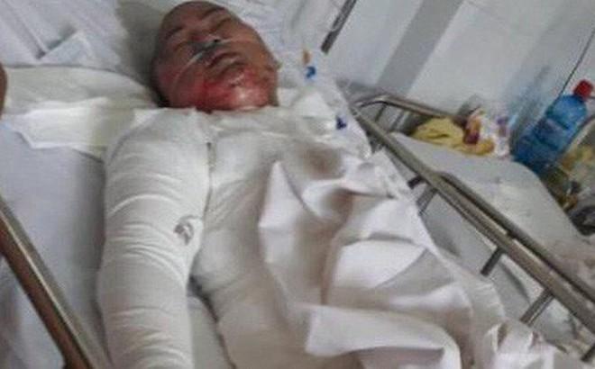 Vụ chồng tẩm xăng thiêu sống 3 mẹ con: Lời tuyên bố khủng khiếp của người chồng