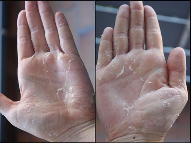 Nhà bạn tích trữ bao nhiêu lọ hóa chất tẩy rửa, vệ sinh: Hãy xem 7 tác hại trước khi mở nắp - Ảnh 3.