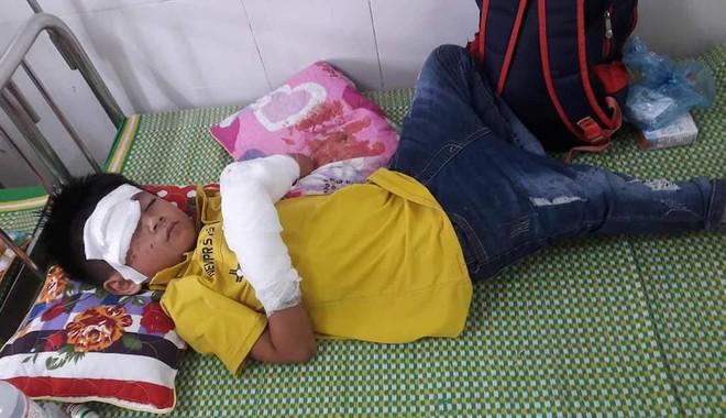 Bé trai 7 tuổi nát 2 bàn tay vì điện thoại phát nổ lúc vừa chơi vừa sạc điện - Ảnh 2.