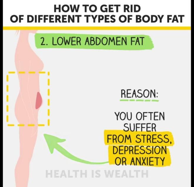 Béo bụng, to đùi, xệ mông và cách điều trị hiệu quả - Ảnh 3.