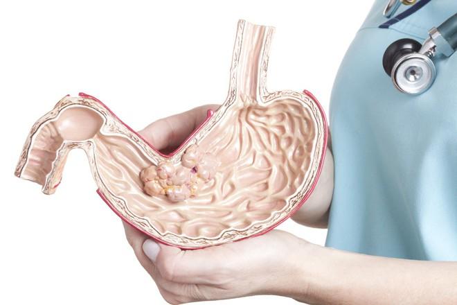 Nhiều người phát hiện ung thư dạ dày ở giai đoạn cuối: Hãy làm 2 điều để kéo dài sự sống - Ảnh 3.