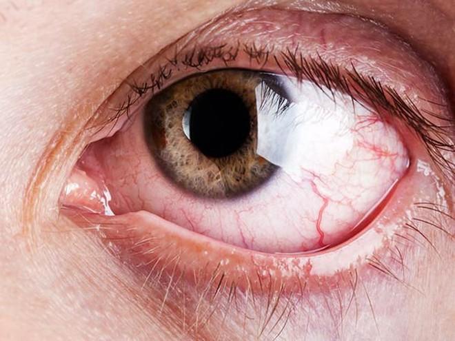 7 lý do gây nên tình trạng chảy nước mắt không thể tự kiềm chế - Ảnh 7.
