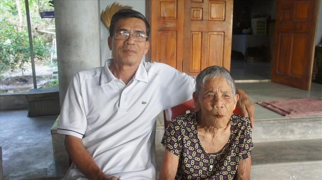 Cụ bà 98 tuổi mọc răng bất thường ở Hà Tĩnh - Ảnh 3.