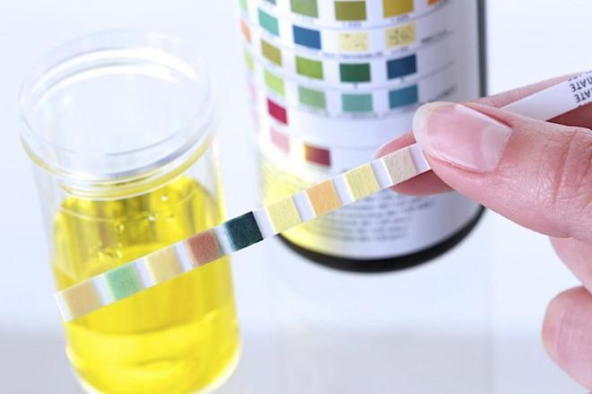 10 bí mật về nước tiểu liên quan đến thận, sức khỏe: Ai cũng nên biết rõ để phòng bệnh tốt - Ảnh 5.
