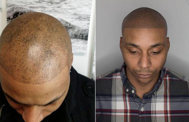 Bị hói đầu lâu năm, chàng trai quyết định xăm tóc giả trên đầu và cái kết khiến anh hoàn toàn hối hận - Ảnh 1.