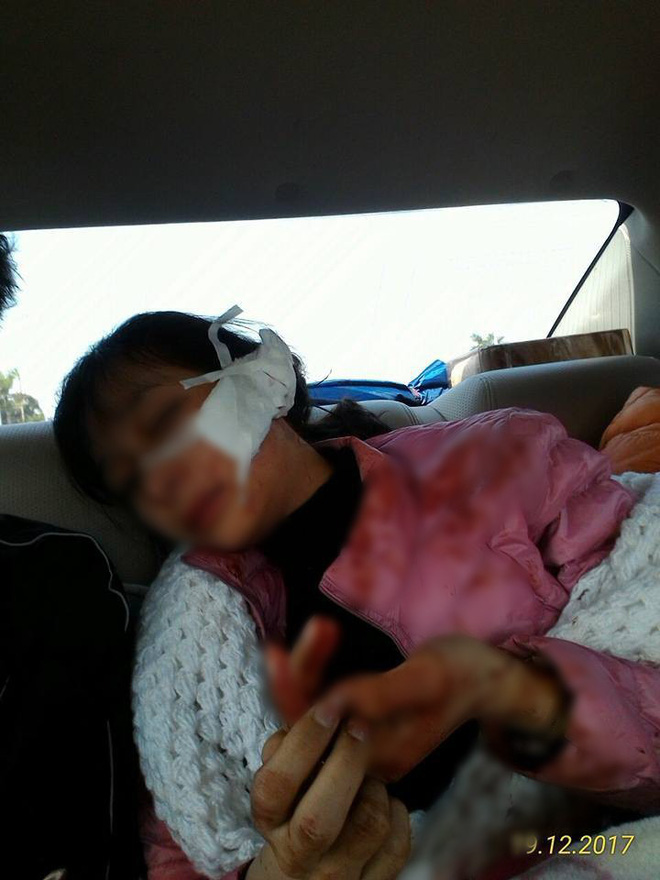 Thanh Hóa: Nữ sinh lớp 11 bị đánh, rạch mặt 14cm phải nhập viện cấp cứu, anh trai cầu cứu cộng đồng mạng - Ảnh 2.