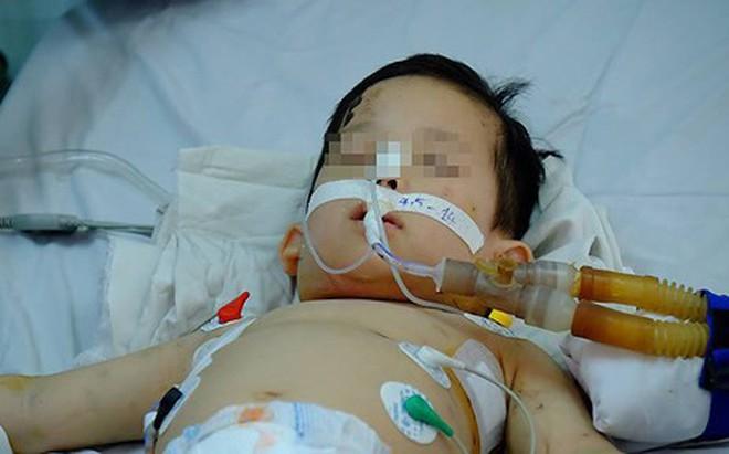 Bé trai 1 tuổi nguy kịch vì bị chó nhà cắn nát mặt mũi