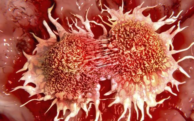 Không ăn thịt đỏ cũng có thể bị ung thư trực tràng: Hãy cảnh giác với những lý do này