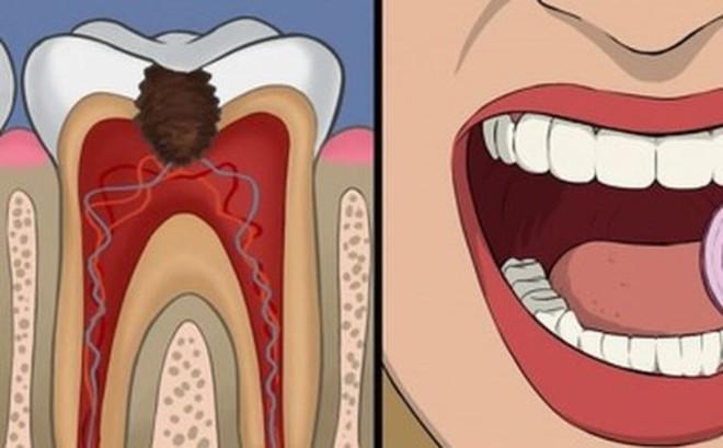 11 cách giúp bạn dịu cơn đau do mọc răng khôn
